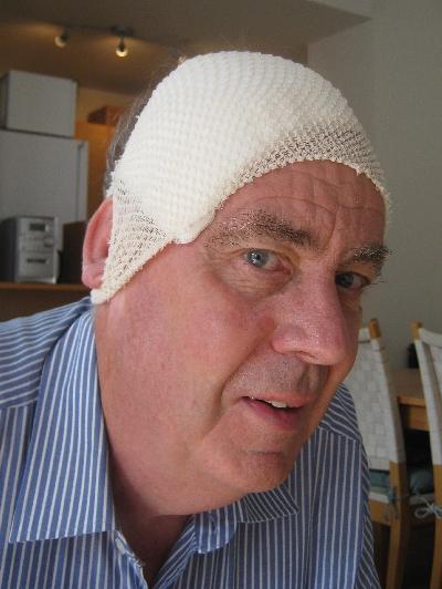 My head following surgery! © Ricky Yates